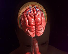 Арахноидит головного мозга: причины, симптомы и последствия