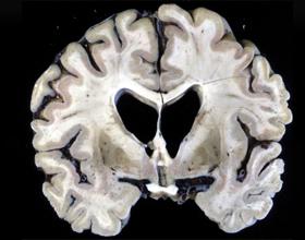 Отмирание коры головного мозга: причины и последствия