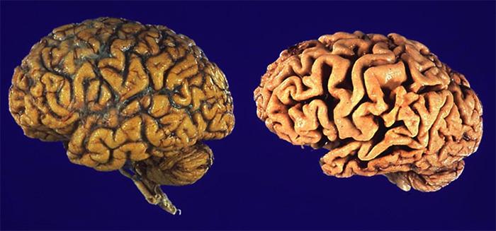 Вид отмирания головного мозга
