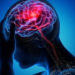 Причины и последствия атрофии мозжечка головного мозга