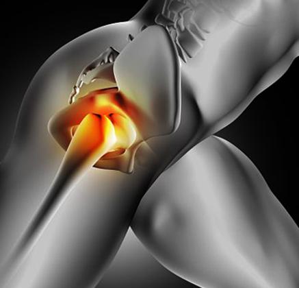 Боль в подвздошной кости