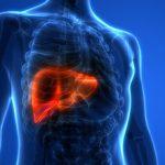 Цирроз печени: причины возникновения и последствия