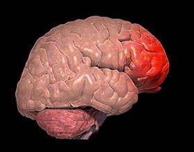 Контузия головного мозга — причины и последствия