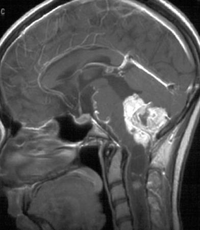 Киста мозжечка на снимке