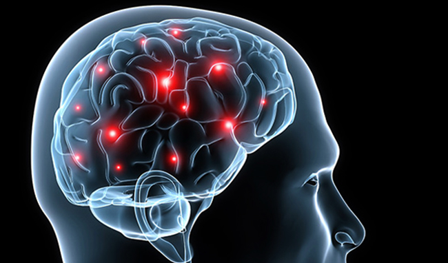 Эпилепсия