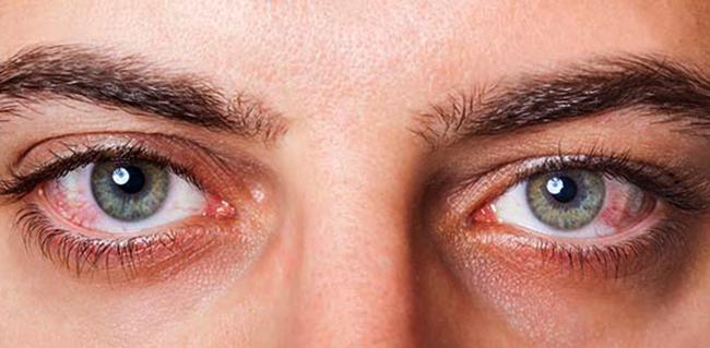 Глаза человек после увеита