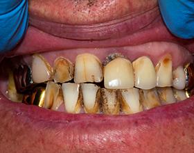 Возможные последствия гнилых зубов для человека