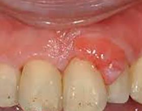 Возможные последствия гранулемы зуба