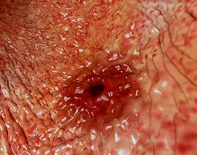Кровотечение в желудке, его причины и последствия