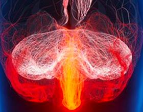Гнойный менингит, его причины и последствия