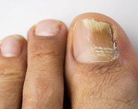 Возможные последствия грибка ногтей для организма