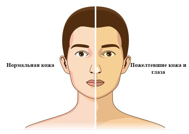 Норма и синдром Жильбера