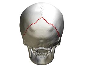 Последствия перелома затылочной кости