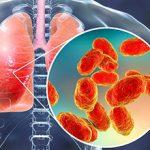 Основные последствия пневмонии для человека