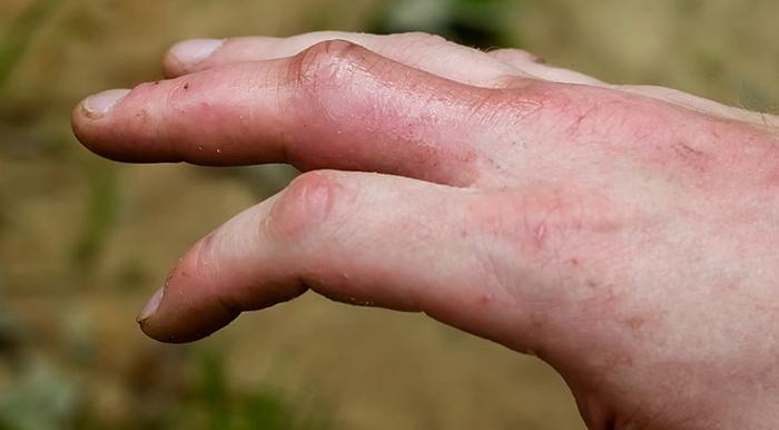 После укуса сколопендры
