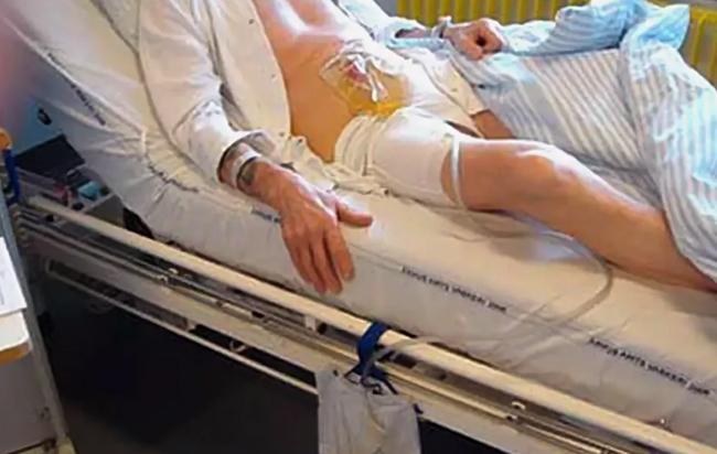 После операции по удалению мочевого пузыря