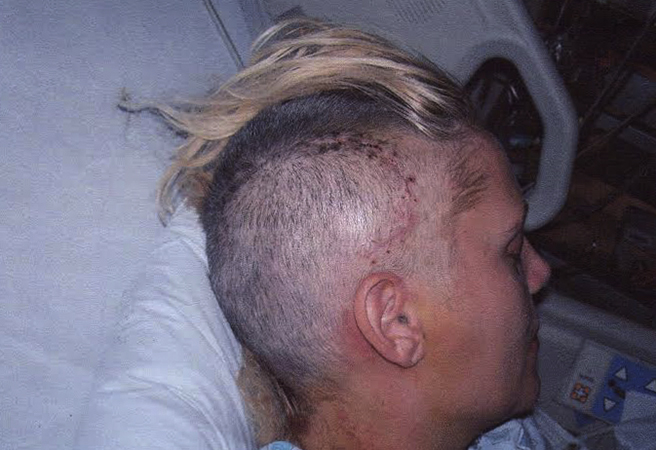 После трепанации черепа