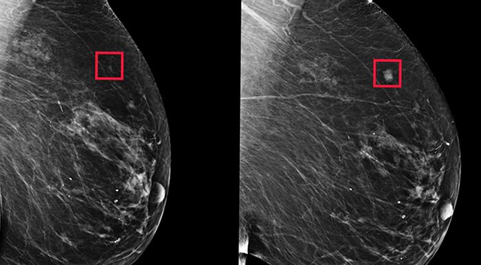 Рак груди на МРТ