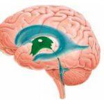 Расширенные желудочки головного мозга у ребенка и их последствия