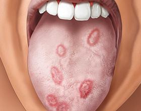 Последствия сифилиса на здоровье человека