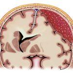 Субдуральная гематома головного мозга: что это, причины и последствия