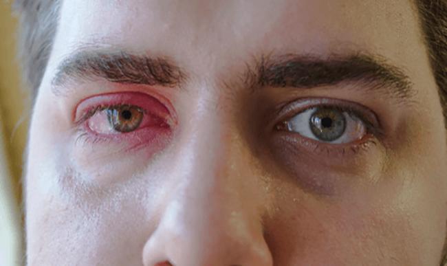 Тромбоз глаза у мужчины