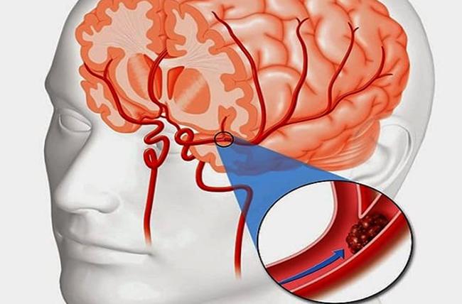 Как выглядит тромб в голове
