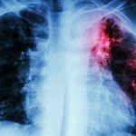 Причины и последствия туберкулеза для организма