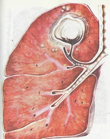 Туберкулома легких