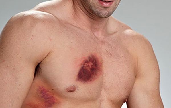 Мужчина ушиб грудную клетку