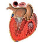 Причины и последствия увеличения левого желудочка сердца