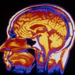 Причины и последствия внутричерепного давления