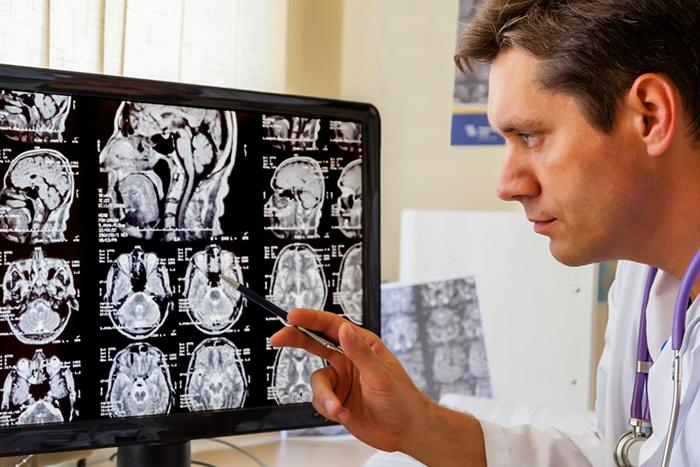 Врач смотрит на отек мозга
