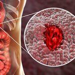 Язва желудка: причины и последствия