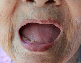 Отсутствие зубов — последствия для организма