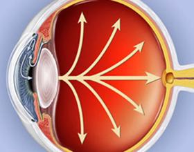 Высокое глазное давление, его причины и последствия
