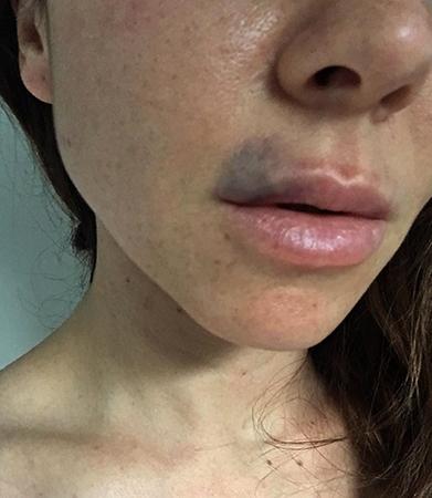 Гематома рядом с губами