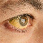 Причины и последствия синдрома Жильбера