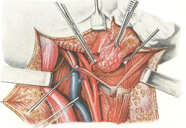 Хирургический способ удаления лимфоузла