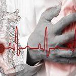 Инфаркт «на ногах» и его возможные последствия