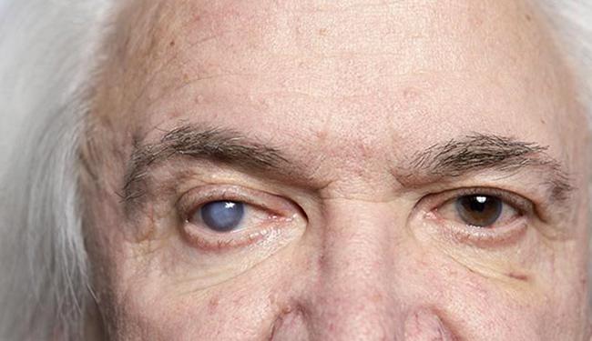 У мужчины катаракта