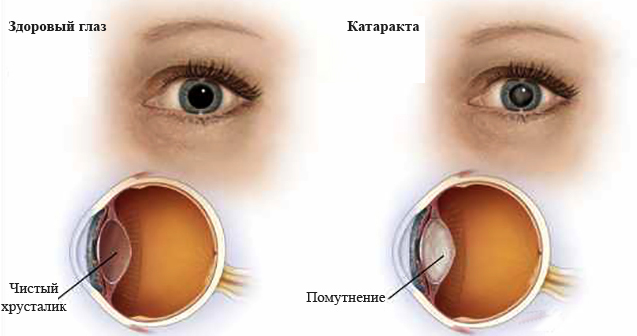 Норма и катаракта