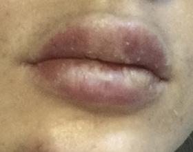 Возможные последствия увеличения губ