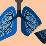Удаление легкого при раке — последствия для здоровья