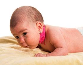 Кривошея у грудничка: причины и последствия