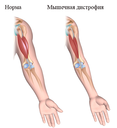 Норма и мышечная дистрофия