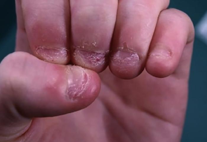 Обгрызанные ногти