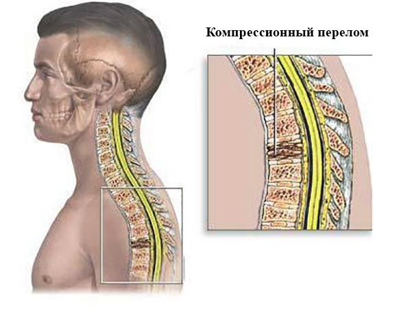 Вид компрессионного перелома