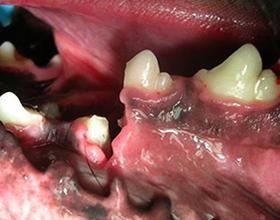 Какие последствия могут после сломанной челюсти