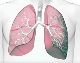 Пневмофиброз легких: что это, причины и последствия